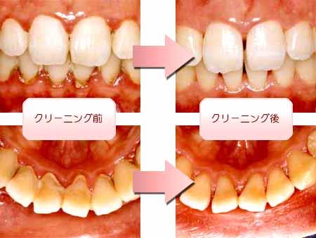 歯のクリーニング(画像)